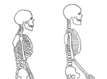 darstellung eines skelettes mit aufgerichteter wirbelsaeule